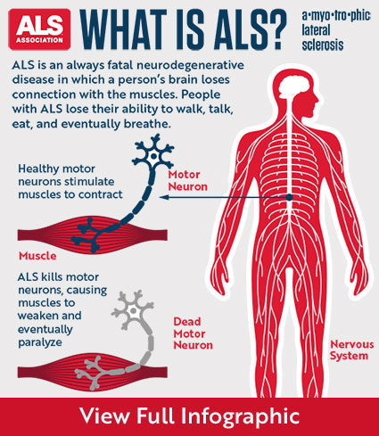 What is ALS - Infographic